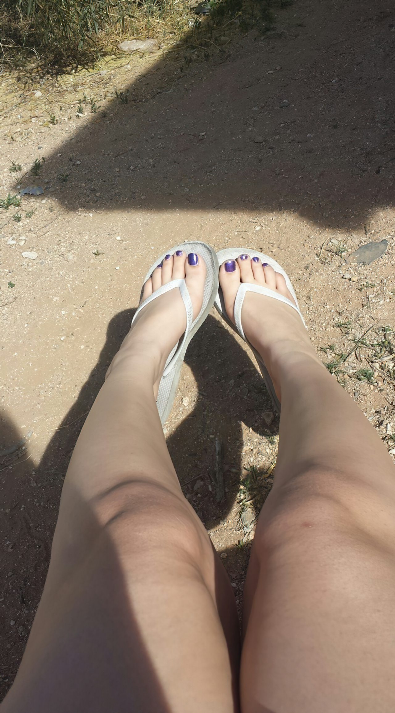 Amadora Pelada num Dia de Sol (2)